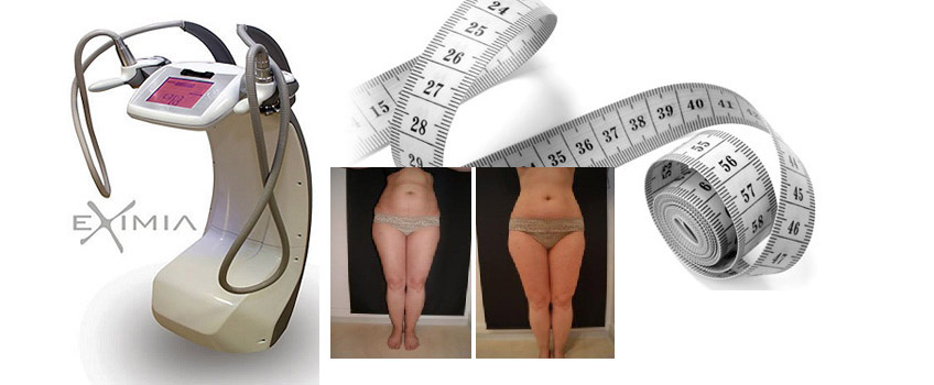 live în tabere de pierdere în greutate pentru adulți cel mai bun mod de a pierde inci nu greutate